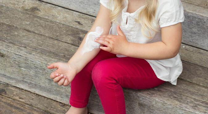 Cuales son los síntomas del eczema